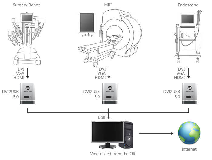 DVI2USB 3.0 kullanarak ameliyathaneden video akışı
