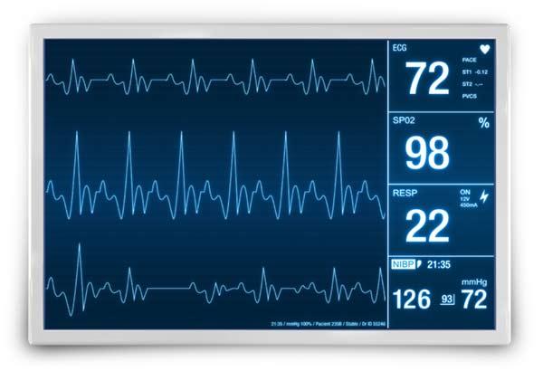 An electrocardiogram (EKG) waveform